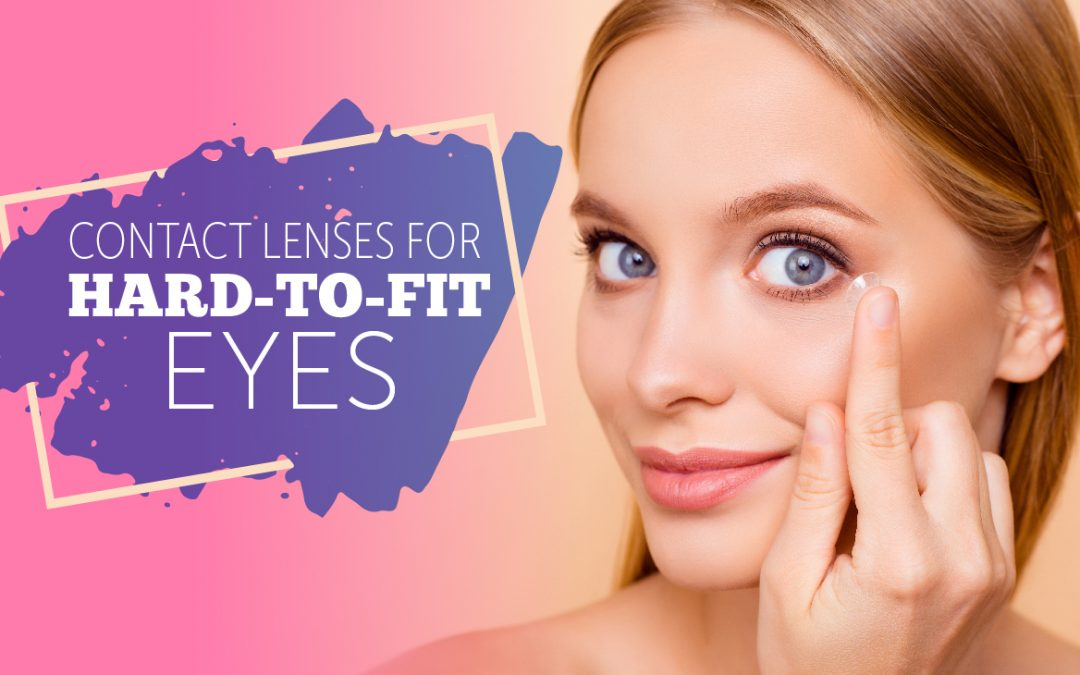 Contact Lenses for Hard-to-Fit Eyes
